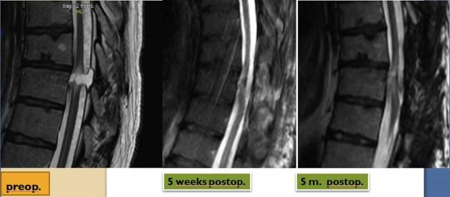 Radiographie de la moelle épinière de Darek Fidyka, avant l'opération (à gauche), 5 semaines (au milieu) et 5 mois plus tard (à droite). La régénération des fibres nerveuses est bien visible. / Ph. © BBC Panorama