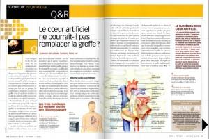 S&V 1069 coeur artificiel