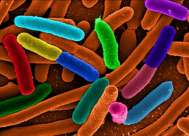 Bactéries E. coli telles qu'on en trouve dans nos intestins (fausses couleurs). Ph. Mattosaurus via Wikicommons)