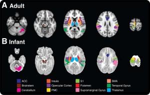 Comparaison des régions cérébrales activées en cas de douleur, chez les adultes et chez les nouveaux-nés (Crédit : Goksan et al.)