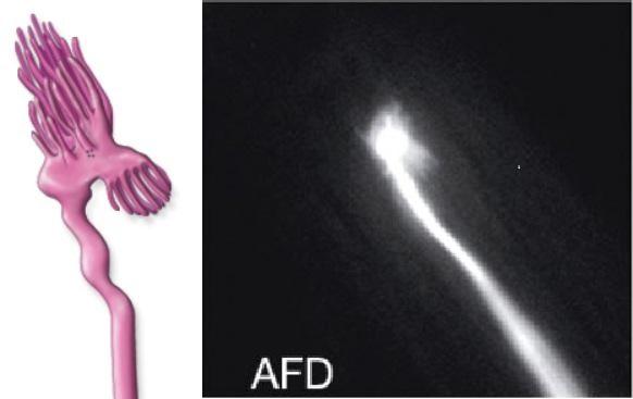 Dessin représentant la forme du neuro-senseur de champ magnétique (à droite, son aspect avec produits de contraste)