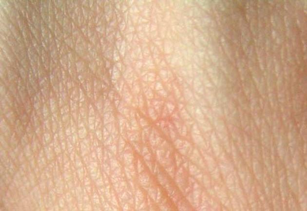 Le vieillissement de la peau est normalement attribué aux radicaux libres. - Ph. CommonismNow / Wikimedia Commons / CC BY-SA 3.0