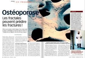 S&V 1037 - osteoporose