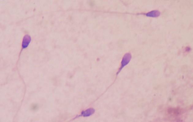 Un nouveau mécanisme contraceptif mis en lumière chez la souris (ici, des spermatozoïdes humains). - Ph. Bobjgalindo / Wikimedia Commons / CC BY SA 4.0