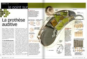S&V 1113 - prothese auditive