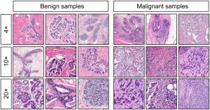 Type de clichés montrés aux pigeons : à gauche, des cellules bénignes, à droite malignes. De haut en bas, le degré de grandissement microscopique (© 2015 Levenson et al.)