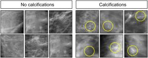 Mammographies présentées aux pigeons pouvant ou non révéler des calcifications (© 2015 Levenson et al.)
