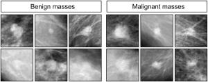 Mammographies montrant des masses de type bénin ou malin (© 2015 Levenson et al.)
