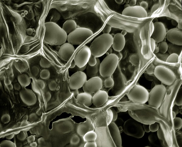 L'amidon sert de base pour construire un antigel végétal - Ph. Philippa Uwins / CC BY-SA 3.0 / Wikimedia Commons