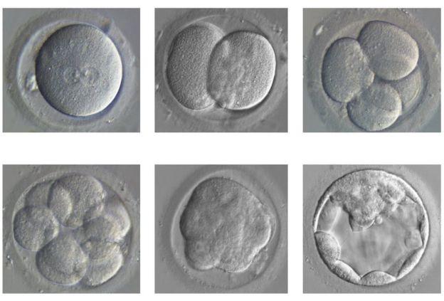 Par une série de divisions, l'ovule fécondé ou zygote (en haut à gauche) se divise pour donner le blastocyste (en bas à droite), le stade à environ 200 cellules. - Ph. Kathy Niakan