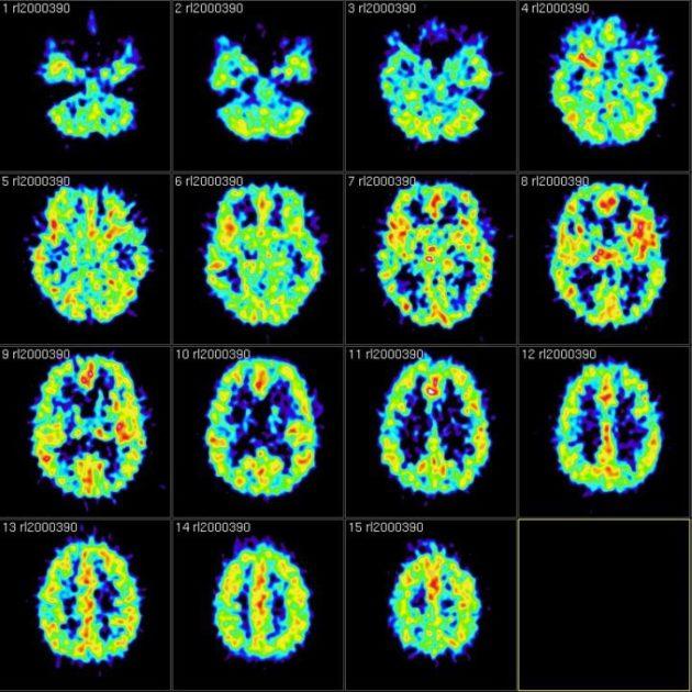 Des chercheurs ont montré comment le cerveau désactive les informations contextuelles d'un souvenir qu'on veut oublier (ici, clichés IRMf, Reigh LeBlanc via Foter.com CC BY-NC).