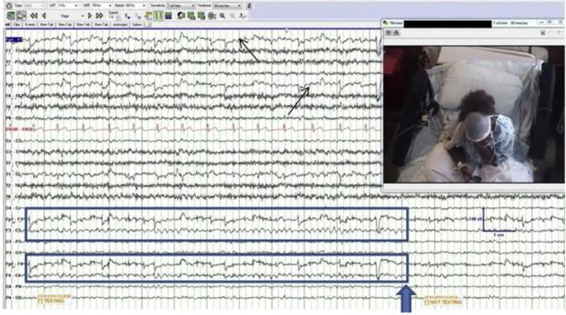 """Ondes EEG d'un des volontaires (jeune femme de 22 ans) présentant l'entrée mentale en """"rythme de textotage"""" (capsules bleues) à deux occasions (William Tatum et al, Epilepsy & Behavior 2016)."""