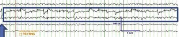 Voici à quoi ressemble l'onde du rythme de textotage (William Tatum et al., Epilepsy & Behavior 2016).